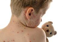 Pedijatri: moguća epidemija morbili